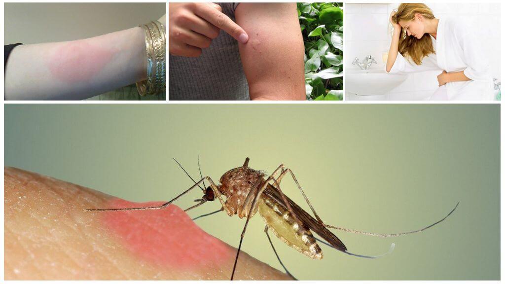 Как сделать что бы прошел укус комара