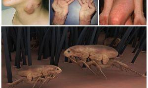 Блохи переносчики болезней