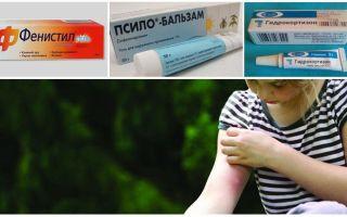 Шишки от укусов комаров у детей и взрослых