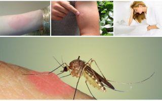 Что делать, если укусил комар