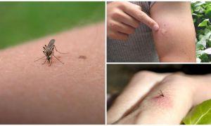 Что делать, если от укусов комаров зуд, покраснения и отек на коже ребенка или взрослого
