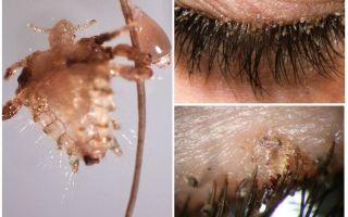 Ресничные вши и гниды