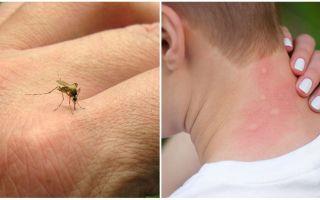 Почему чешутся комариные укусы
