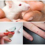 Мышиный укус на человеке