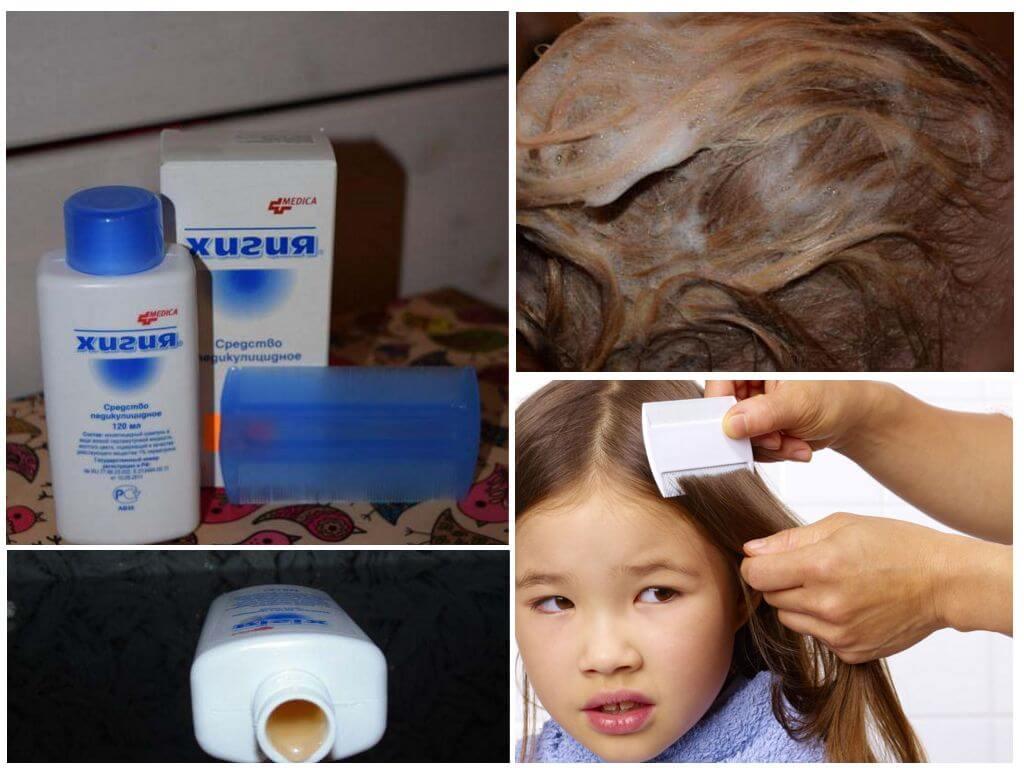 Использование шампуня Хигия