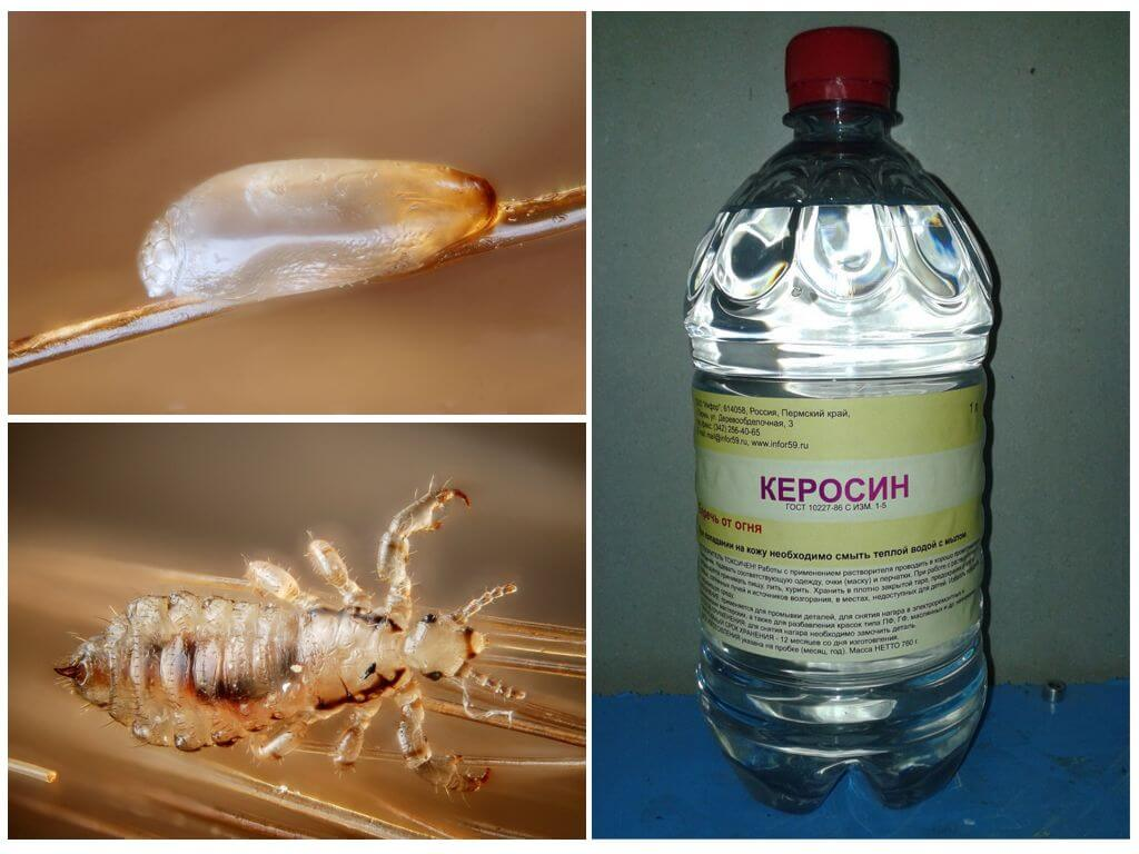Применение керосина при педикулезе