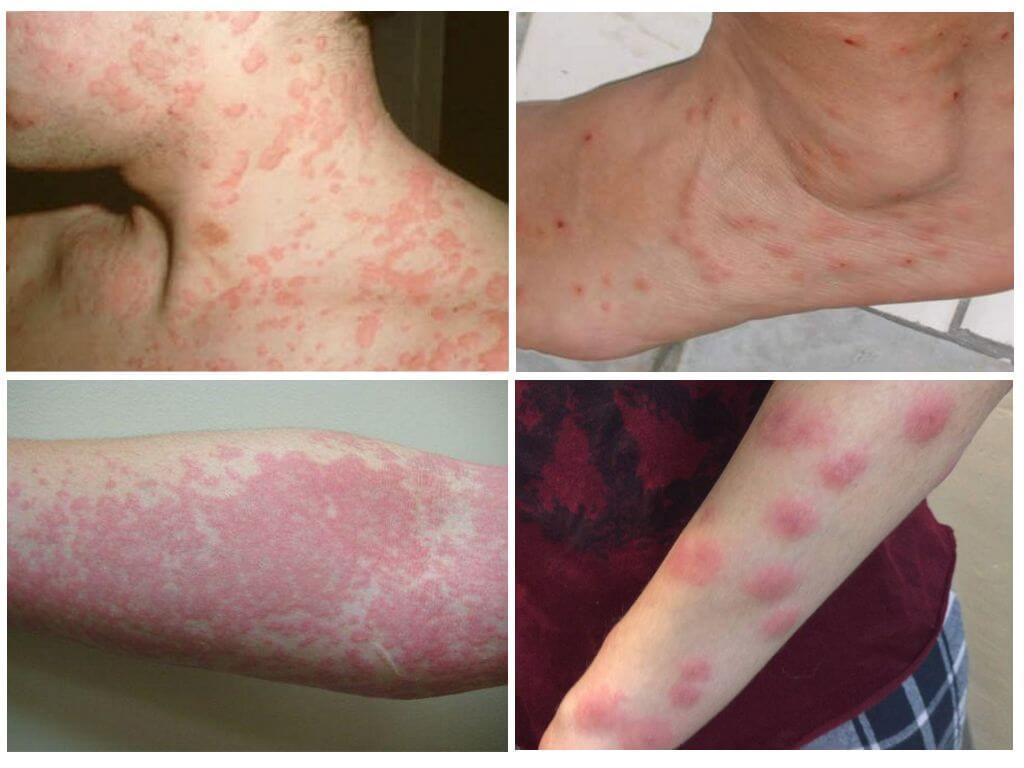 Слева аллергическое высыпание на коже, справа - укусы клопов и аллергия на них
