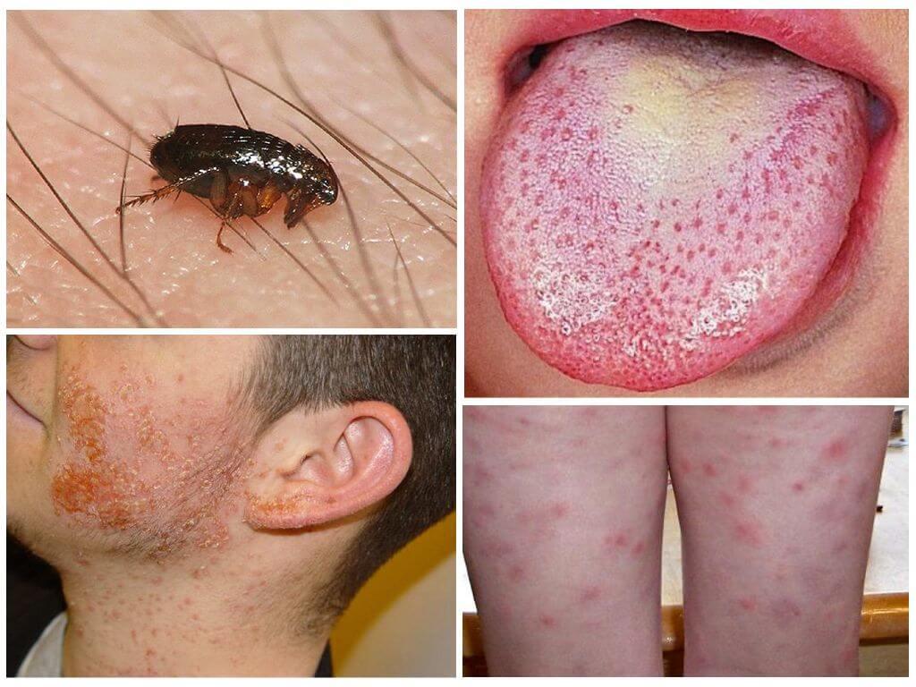 Заболевания, передающиеся насекомыми