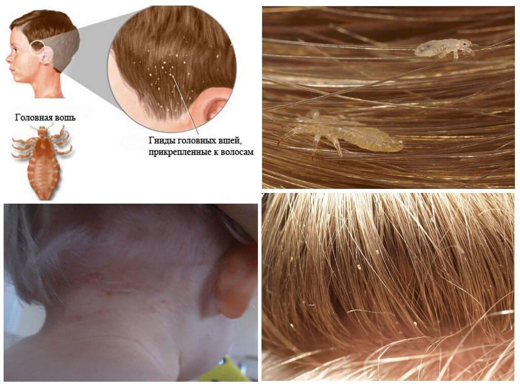Педикулез на волосах