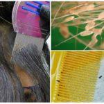 Вычесывание паразитов на длинных волосах