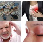 Последствия укуса поцелуйного клопа