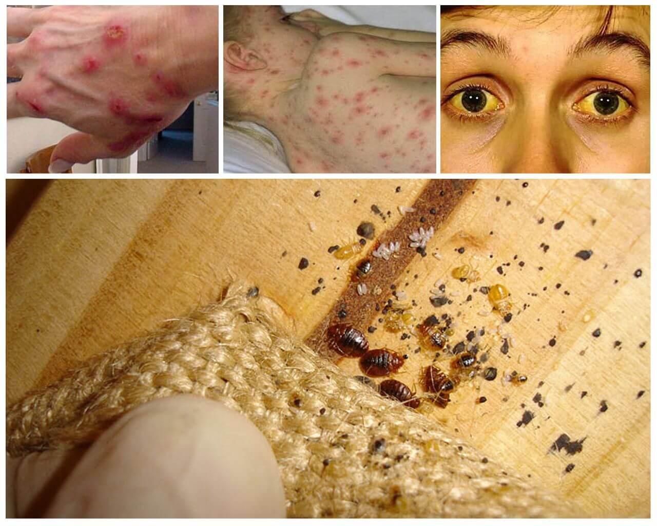Вред от кровососущих насекомых