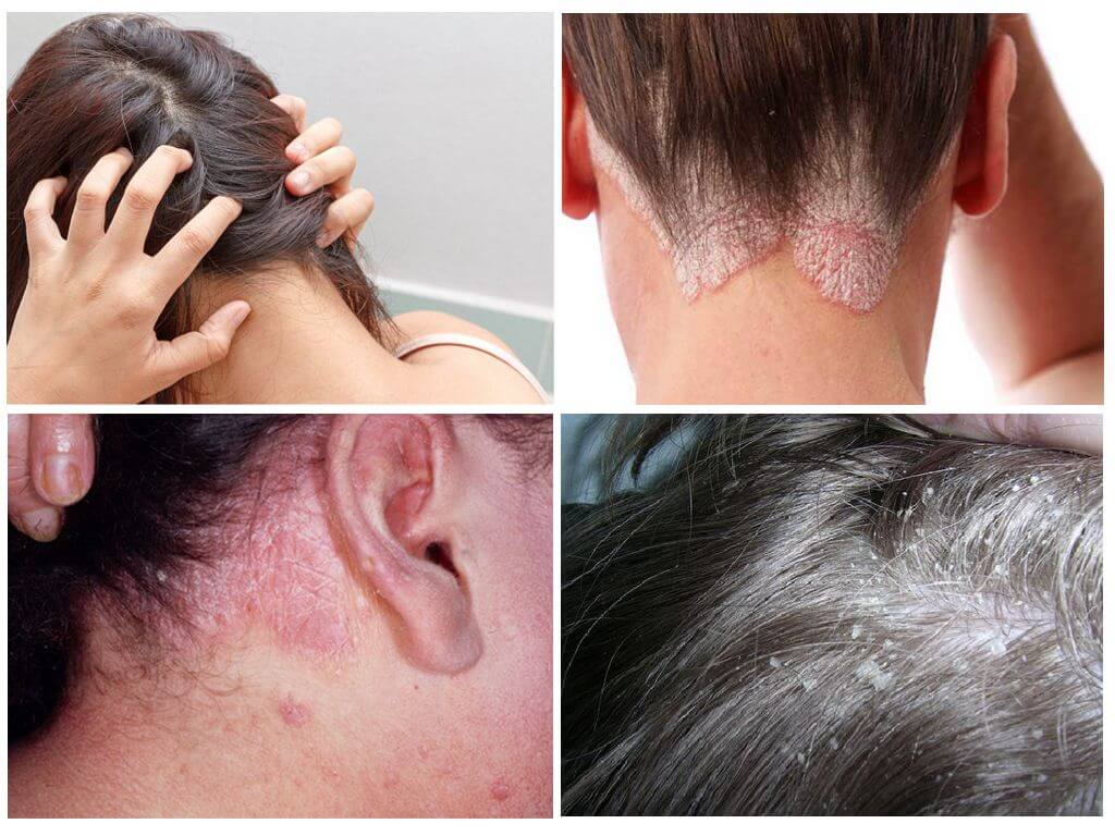 Причины зуда кожи головы