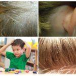Симптомы педикулеза у детей