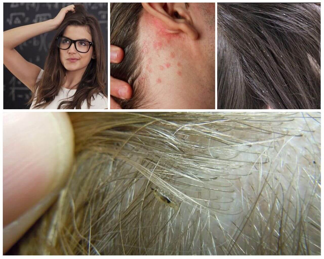 Симптомы вшивости