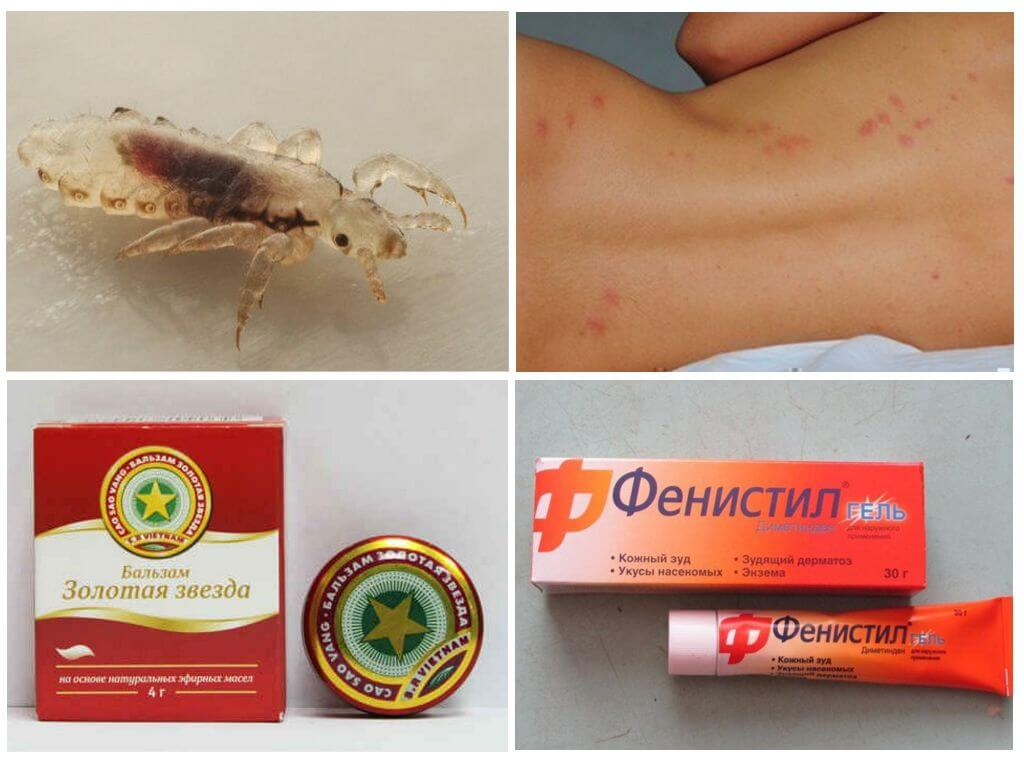 Средства от аллергии на укусы