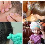 Терапия педикулеза у детей