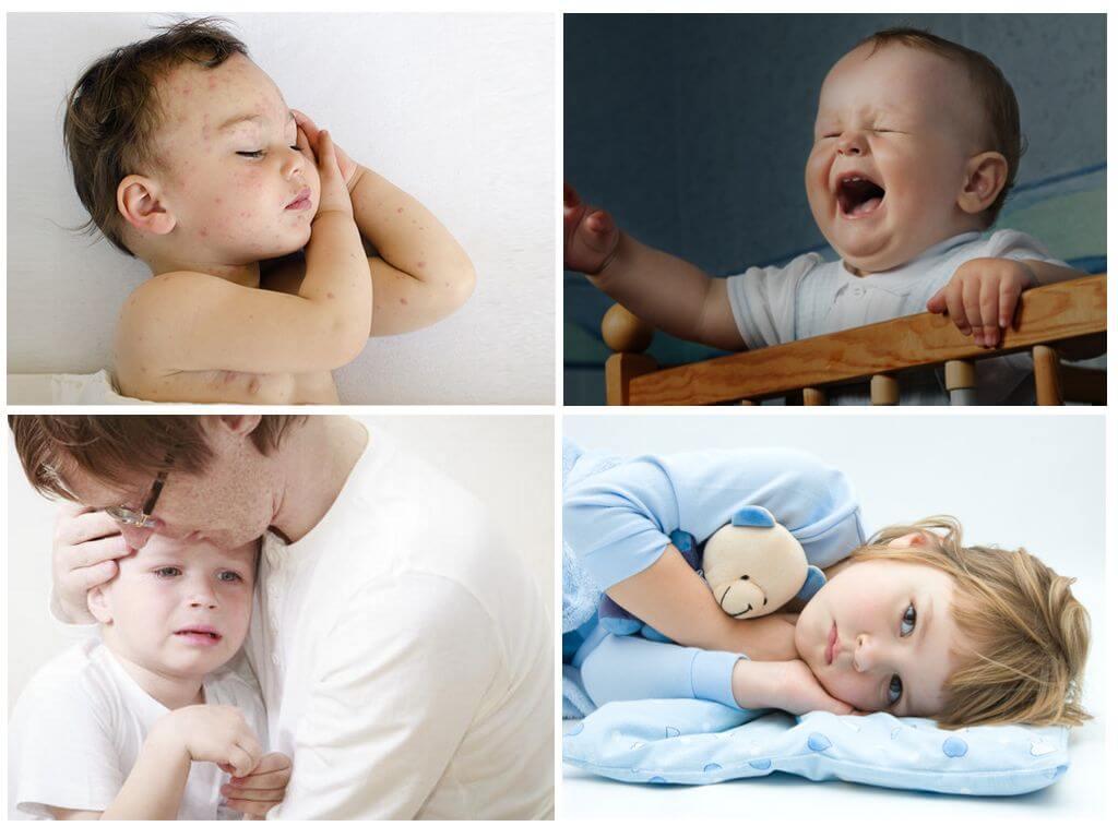 Реакция детей на укусы клопов