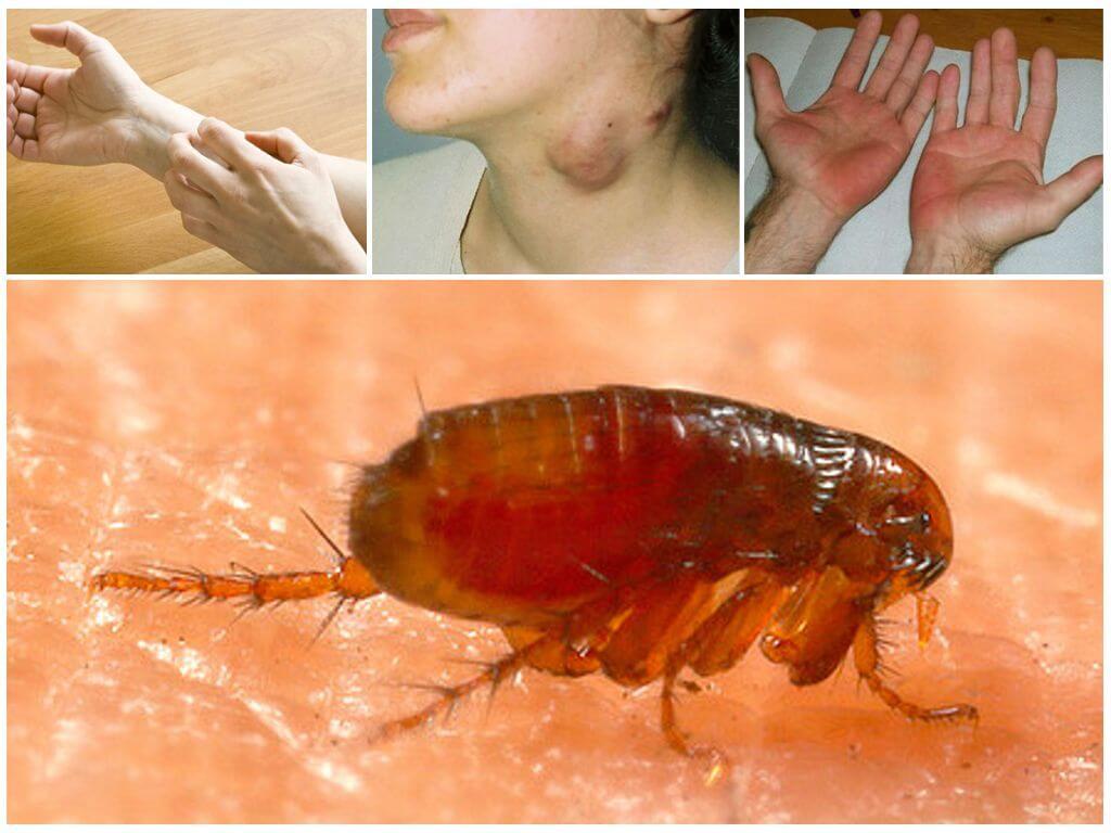 Последствия укусов блох