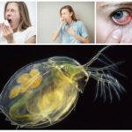 Аллергия на водяных блох