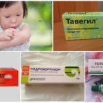 Антигистаминные средства при укусах насекомых