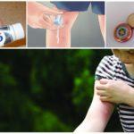 Народные рецепты снятия последствий укусов насекомых