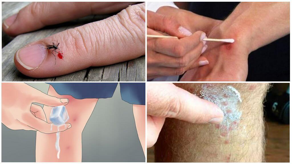 Последовательность обработки укуса комара
