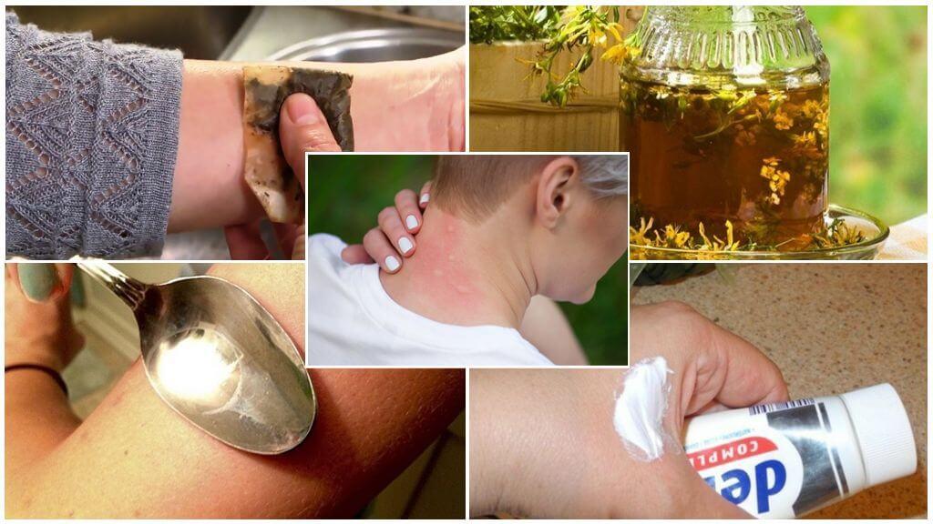 Первая помощь при укусе комара