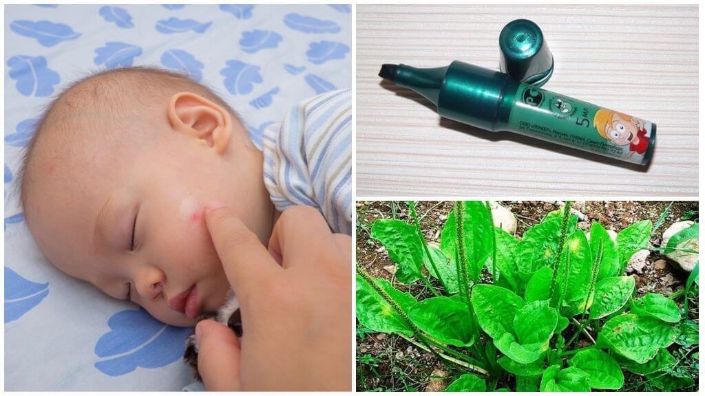 Средства, применяемые при укусе комаров у детей