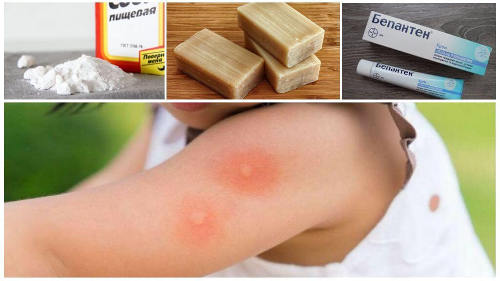 Лечение укусов насекомых народными средствами