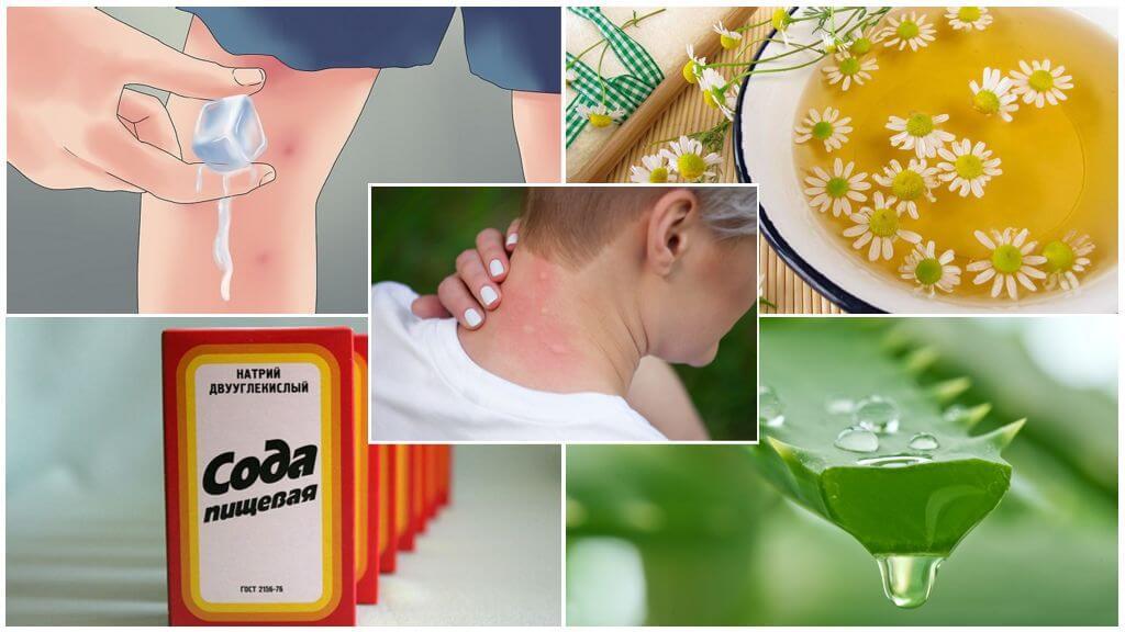 Народные средства лечения укусов насекомых