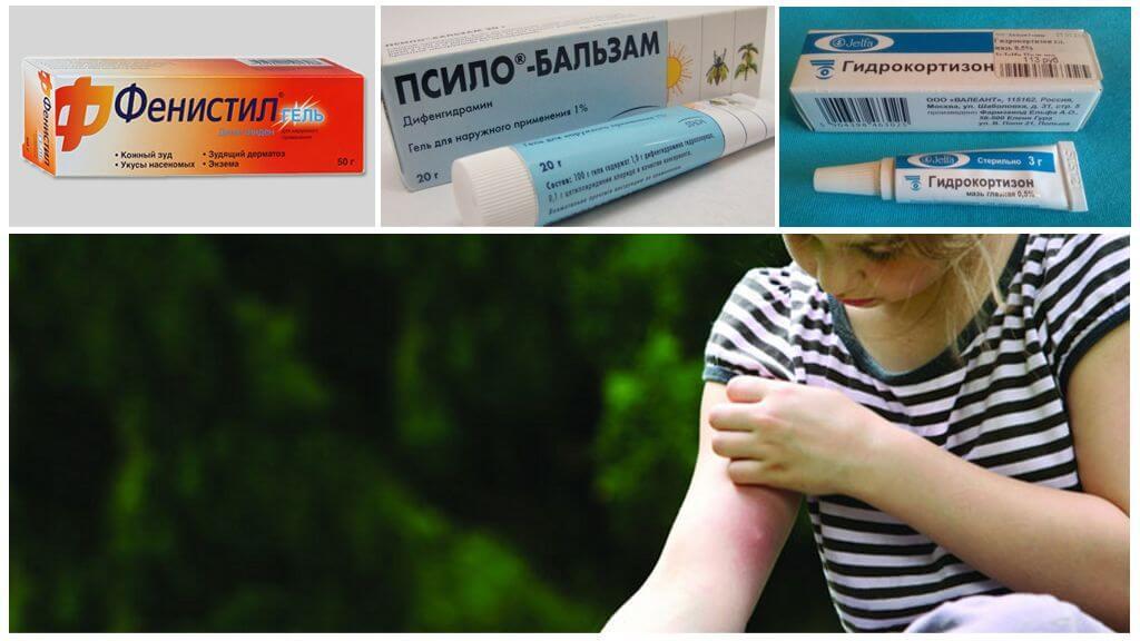 Мази от укусов комаров