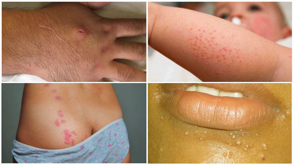 Высыпания, похожие на комариные укусы
