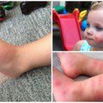 Аллергия у детей на укусы комаров