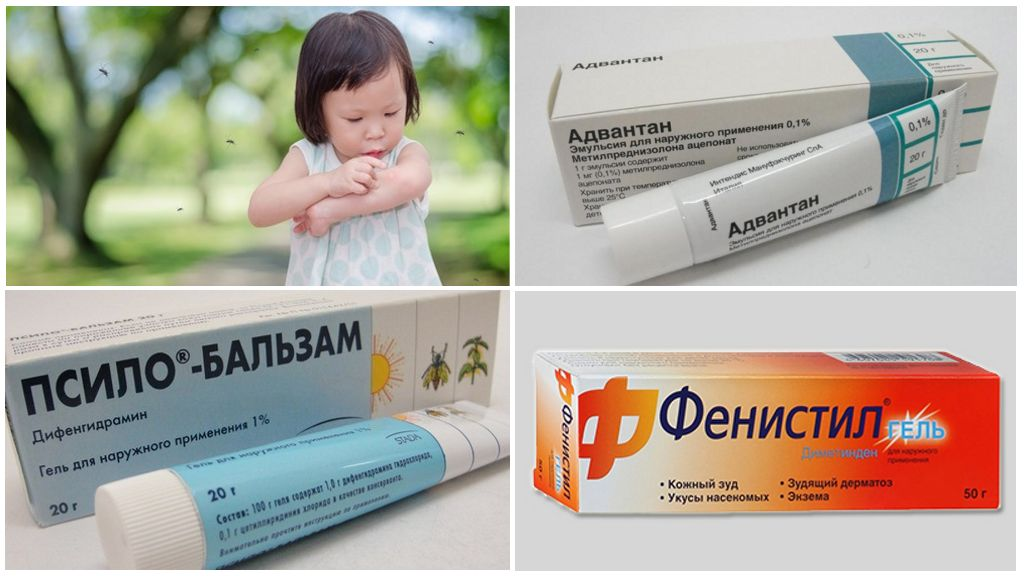Средства от аллергии у детей после укуса комара