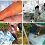 Болезни, передаваемые комарами