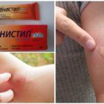 Фенитил от укусов комаров