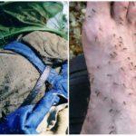 Комары в тайге