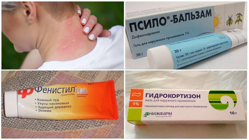 Лекарства от укуса комара