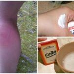 Народные средства от укуса комара