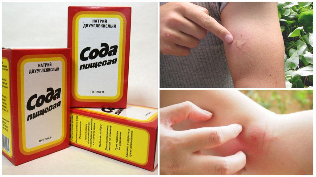 Сода от укусов комаров