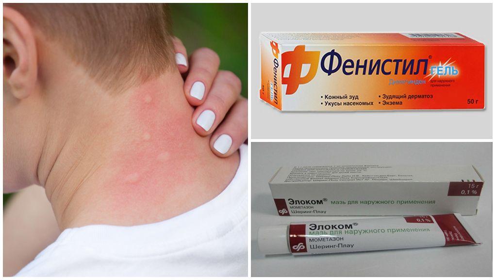 Средства для лечения аллергии