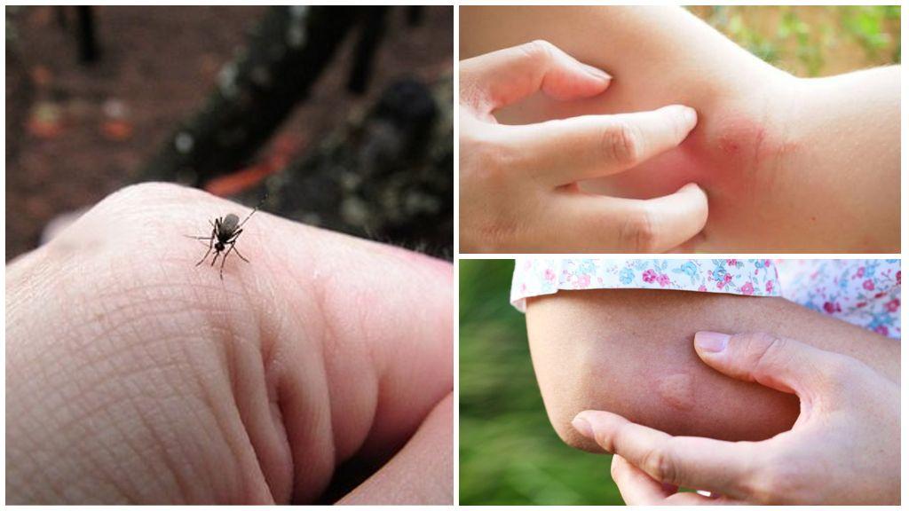 Укус комара на коже