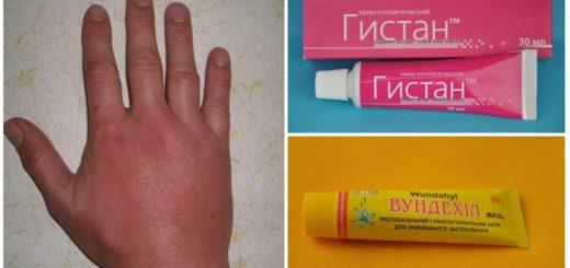 Гомеопатические препараты, применяемые после укуса комара