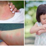 Комариные укусы