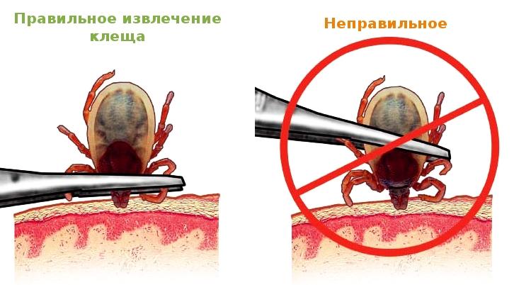 Чем опасен укус клеща: медики предупреждают